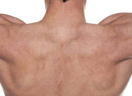 Upper Back Fat
